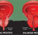 专家解析:前列腺肥大是