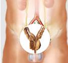 专家解析,泌尿生殖感染
